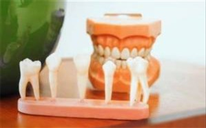 اشتباهی که نباید بعد کشیدن دندان عقل مرتکب شوید