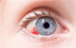 علت وجود لکههای قرمز داخل چشم