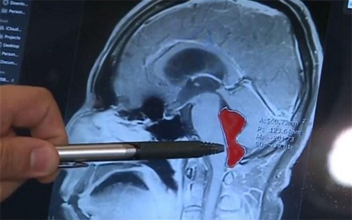 14 سال زندگی با یک کِرم در مغز