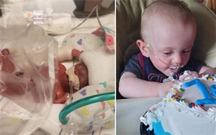 نارس ترین نوزاد دنیا تولد یک سالگی خود را جشن گرفت