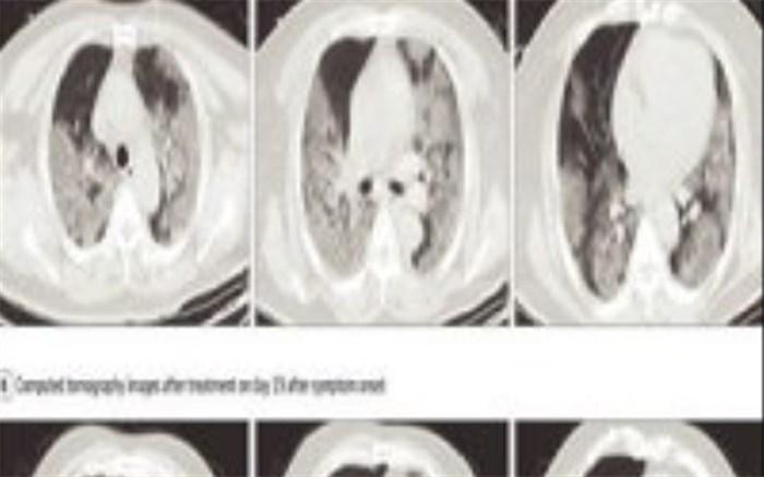 بیمار کرونایی چه زمانی باید «سی تی اسکن»دهد؟