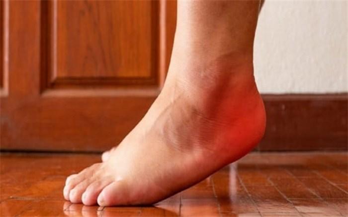 درد پا پس از ورزش