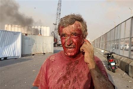شوک  انفجار در بیروت | Received
